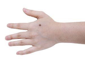 ほくろ 人差し指 【ほくろ占い】指のほくろの位置でわかる!その人の性格14パターン feely(フィーリー)